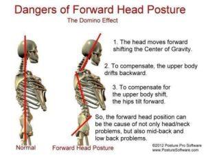 L'effet domino du port antérieur de la tête